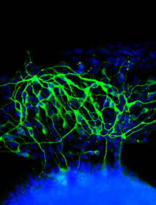 Pluripotent stem cells exposed to a soft surface begin to transform into neurons, photo courtesy Kiessling Group